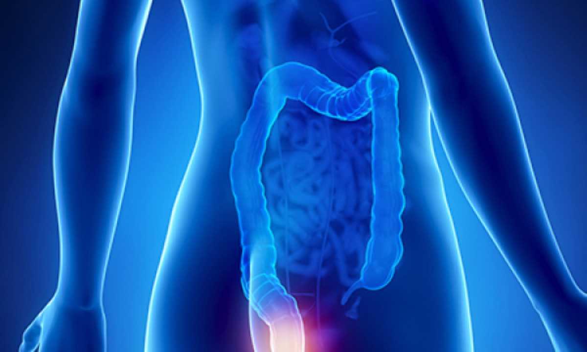 papilloma virus tumore anale a eliminat ea însăși verucile genitale