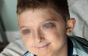 Crema da bambini un tic così a dermatite atopic